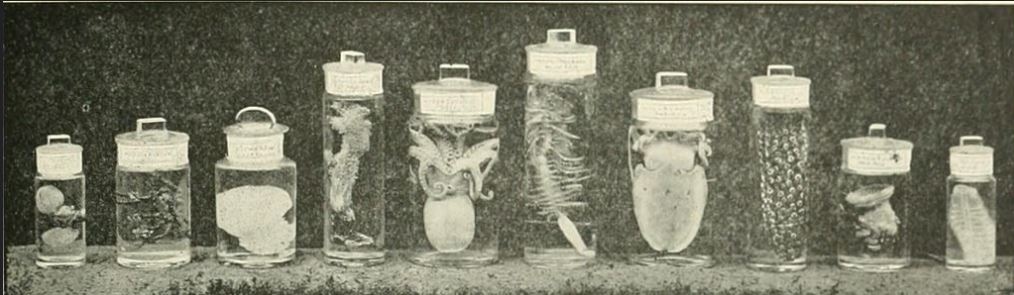 A Visceral Haunting Jars of preserved viscera