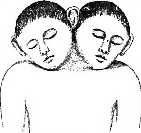 Double-Headed Monsters in Fiction two headed child