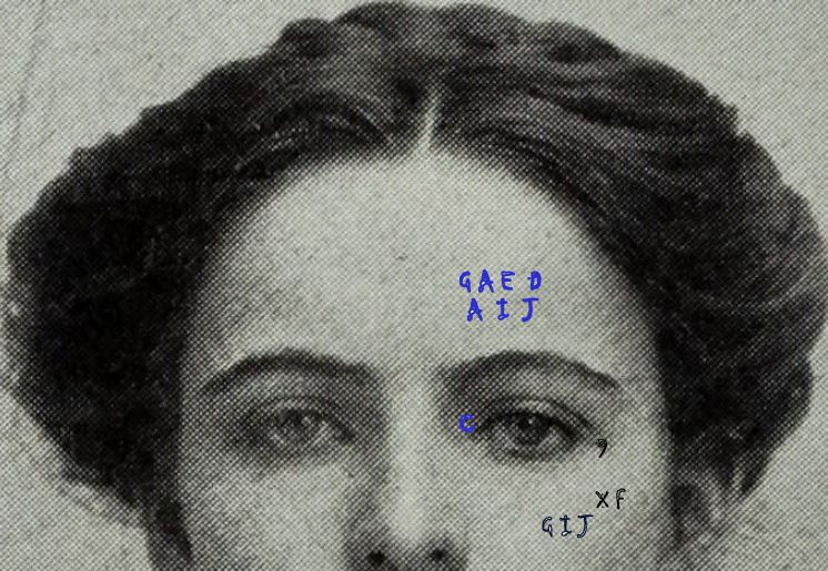 Dermographia on Face and Knee My interpretation of Mrs. Marcil's skin-writing.