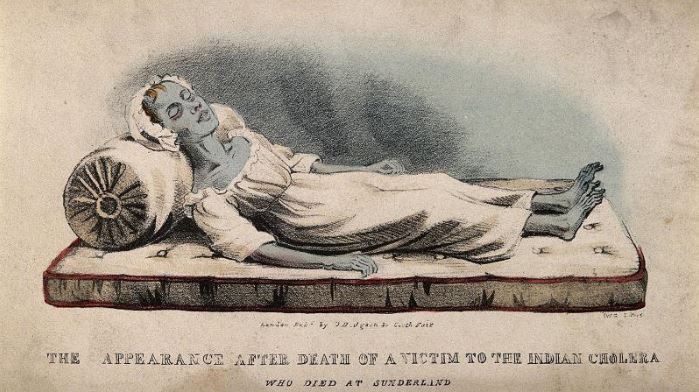 Cholera Curiosities The corpse of a cholera victim 1832 https://wellcomecollection.org/events/blue-corpse-0